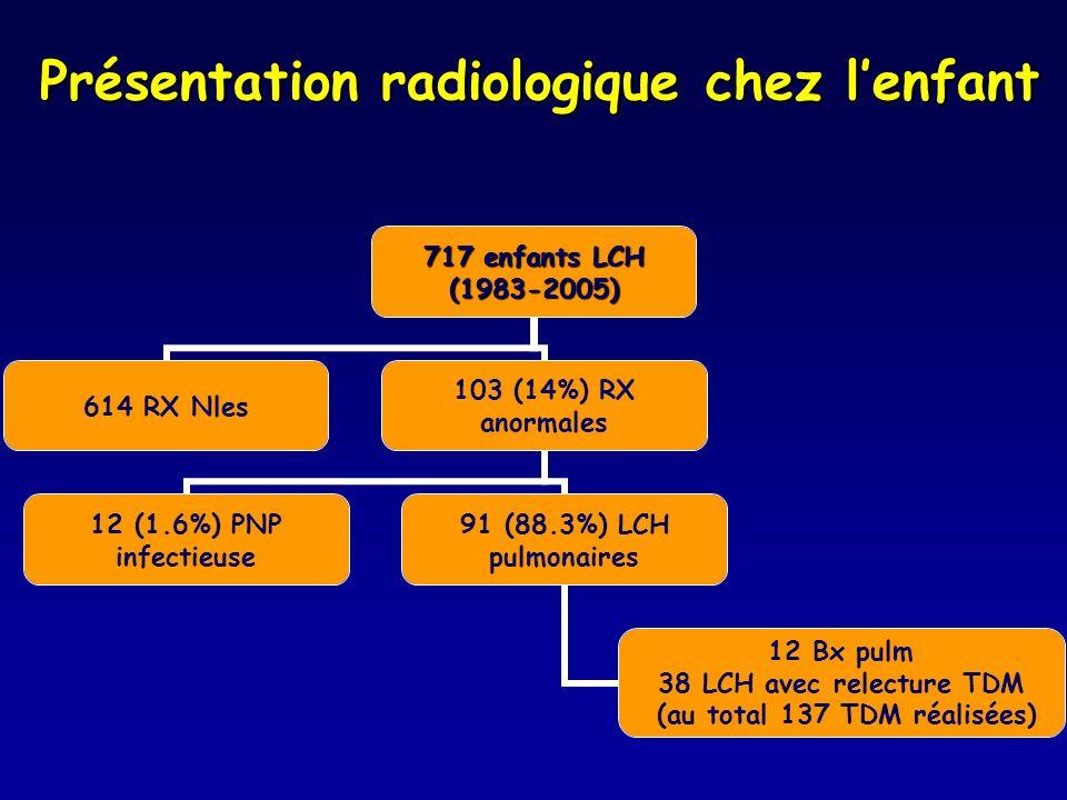 Présentation radiologique chez l'enfant