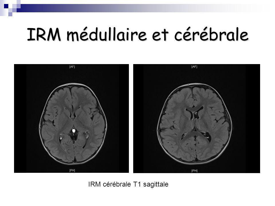 IRM médullaire et cérébrale