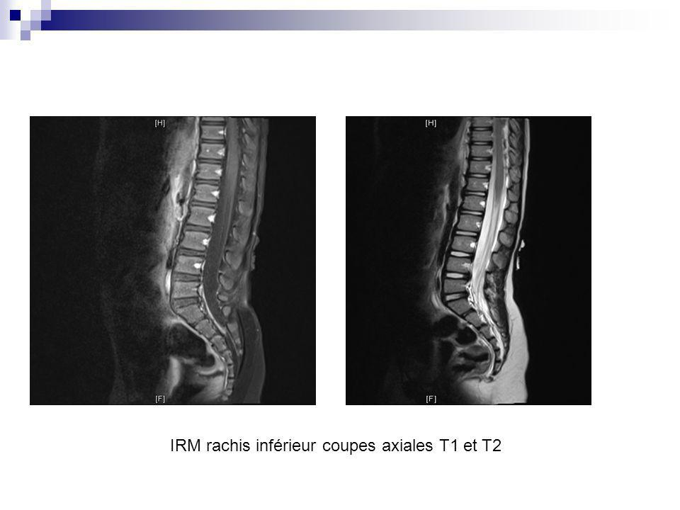 IRM rachis inférieur coupes axiales T1 et T2