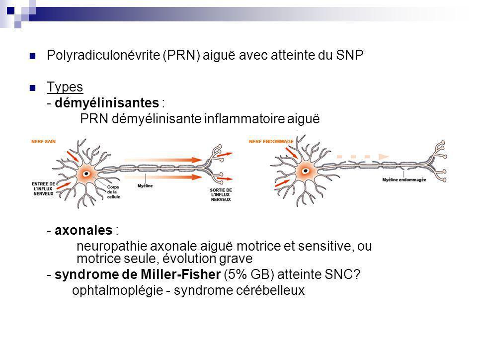 Polyradiculonévrite (PRN) aiguë avec atteinte du SNP