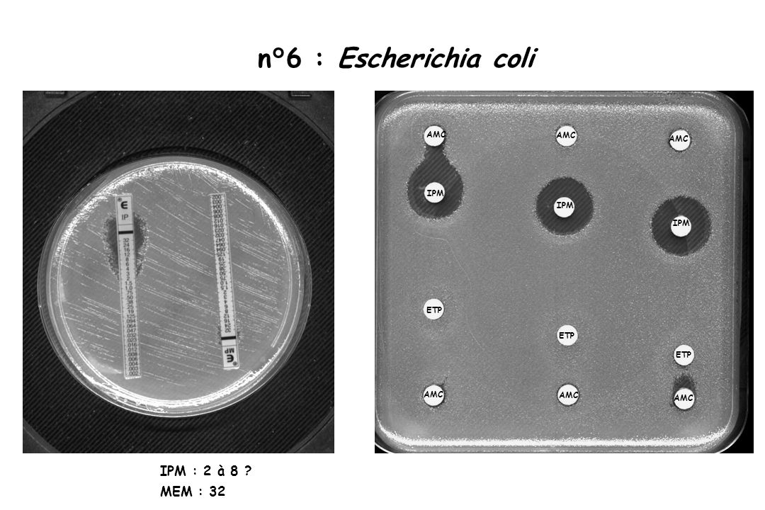 n°6 : Escherichia coli AMC ETP IPM IPM : 2 à 8 MEM : 32
