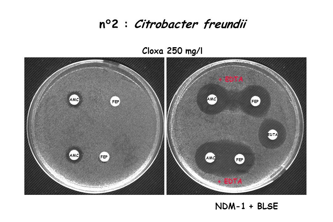 n°2 : Citrobacter freundii