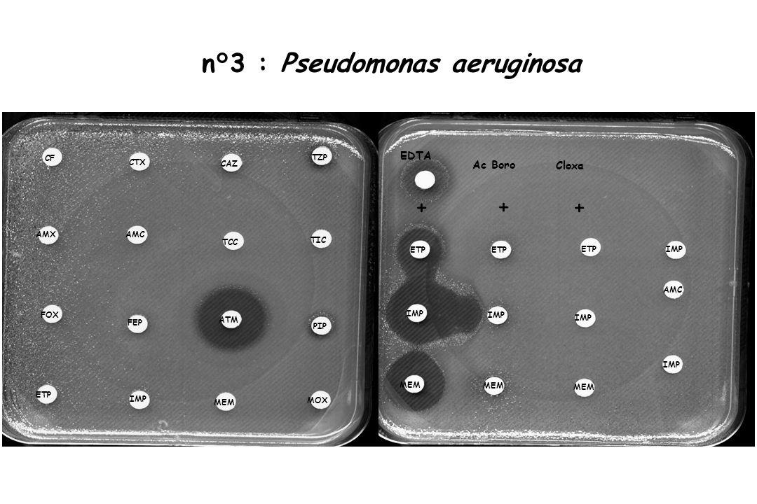 n°3 : Pseudomonas aeruginosa