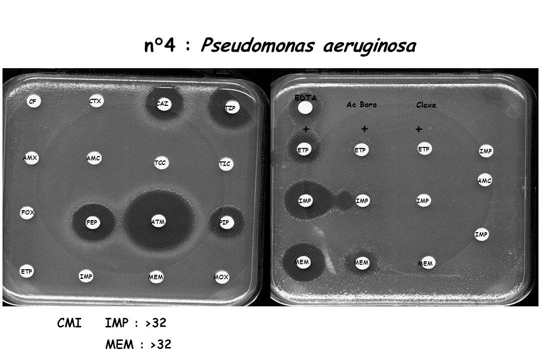 n°4 : Pseudomonas aeruginosa
