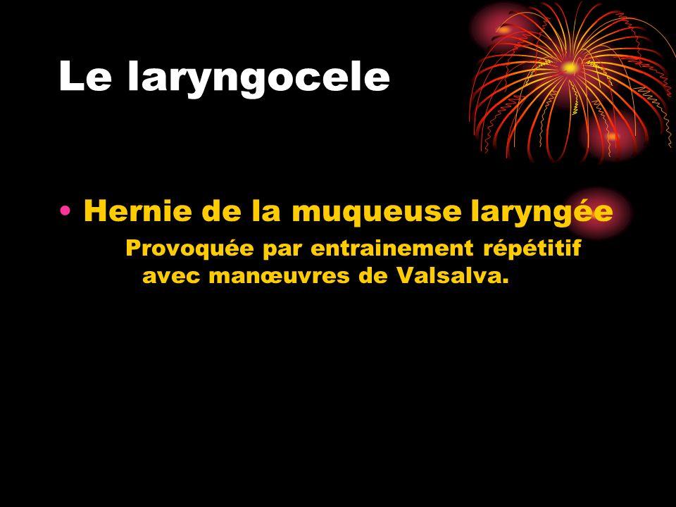 Le laryngocele Hernie de la muqueuse laryngée