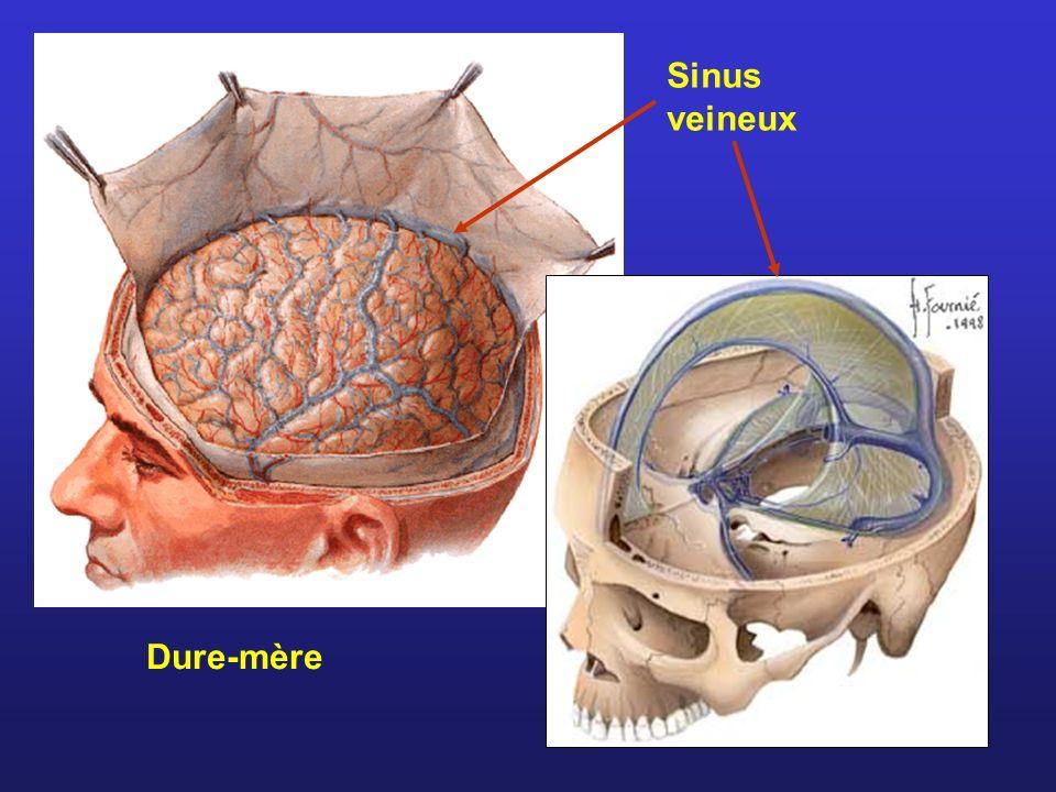 Sinus veineux Dure-mère