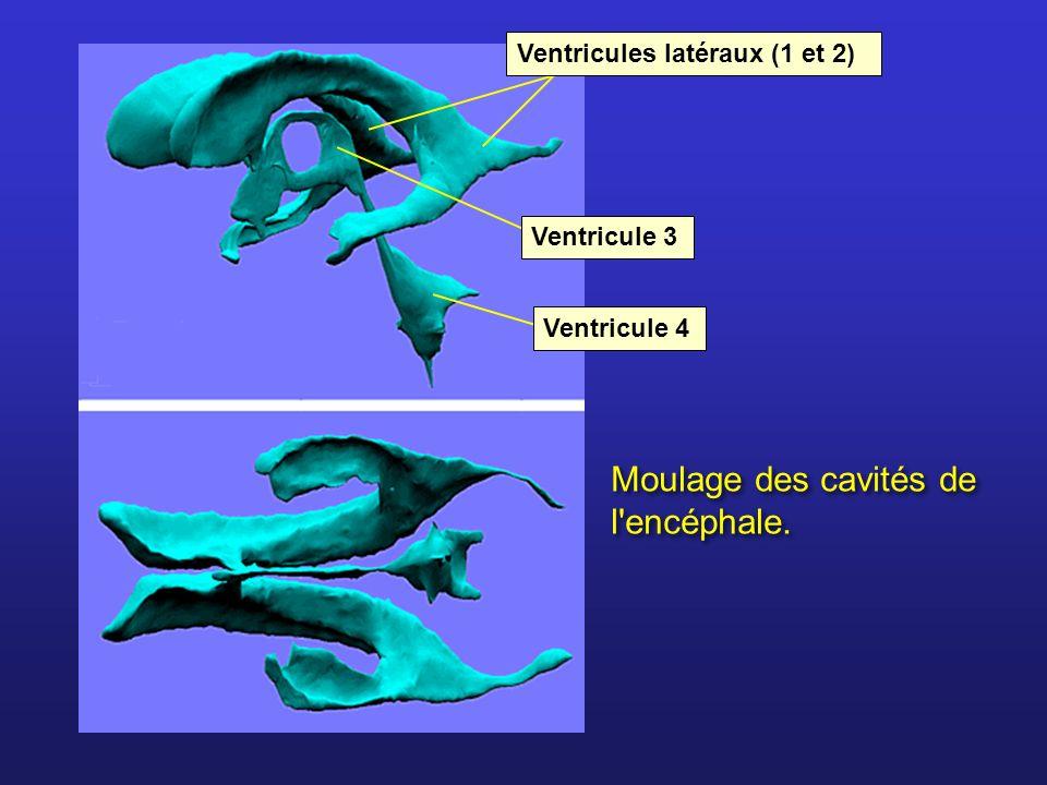 Moulage des cavités de l encéphale.