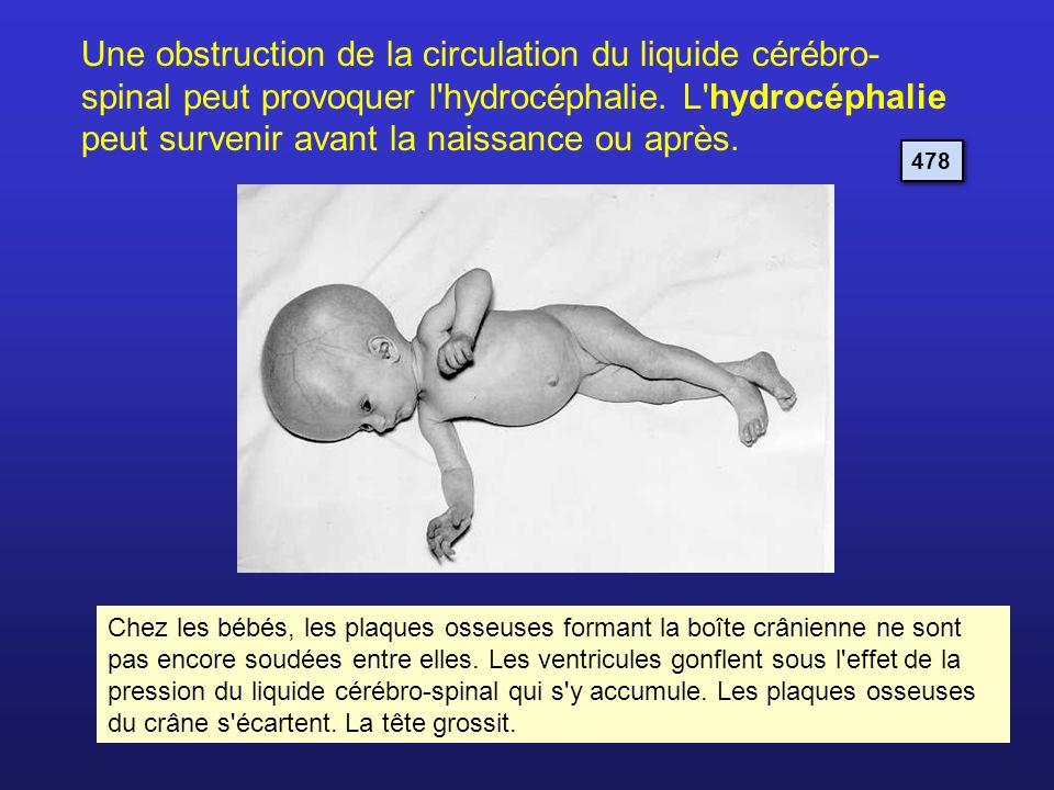 Une obstruction de la circulation du liquide cérébro-spinal peut provoquer l hydrocéphalie. L hydrocéphalie peut survenir avant la naissance ou après.