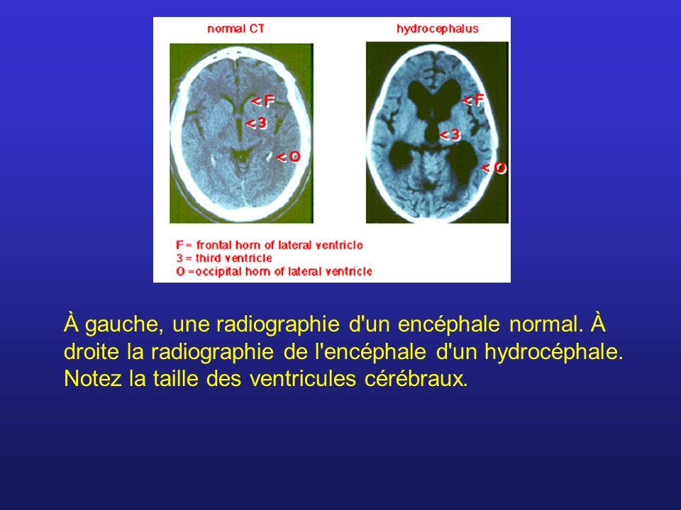 À gauche, une radiographie d un encéphale normal