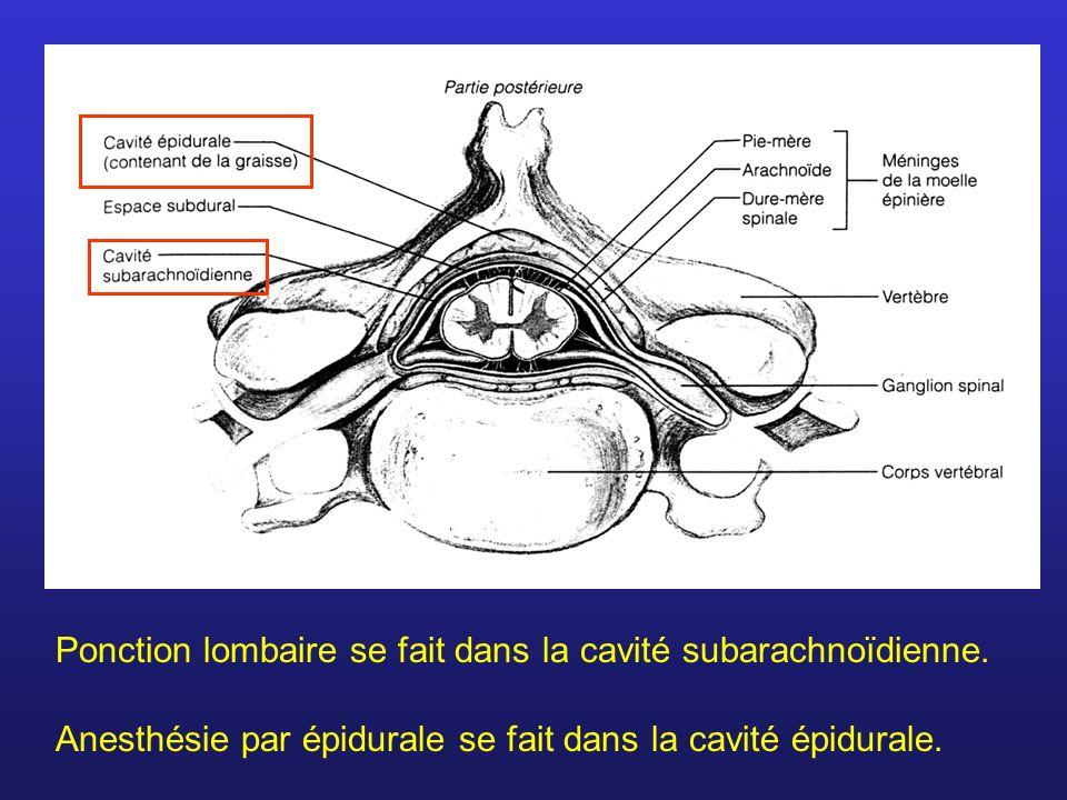 Anesthésie par épidurale se fait dans la cavité épidurale.