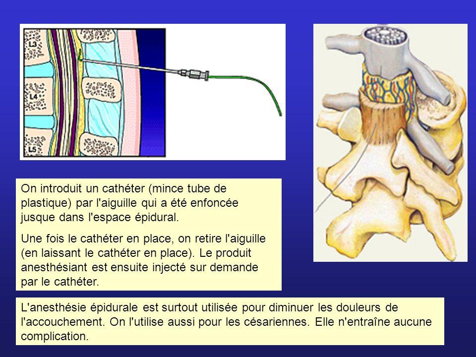 On introduit un cathéter (mince tube de plastique) par l aiguille qui a été enfoncée jusque dans l espace épidural.