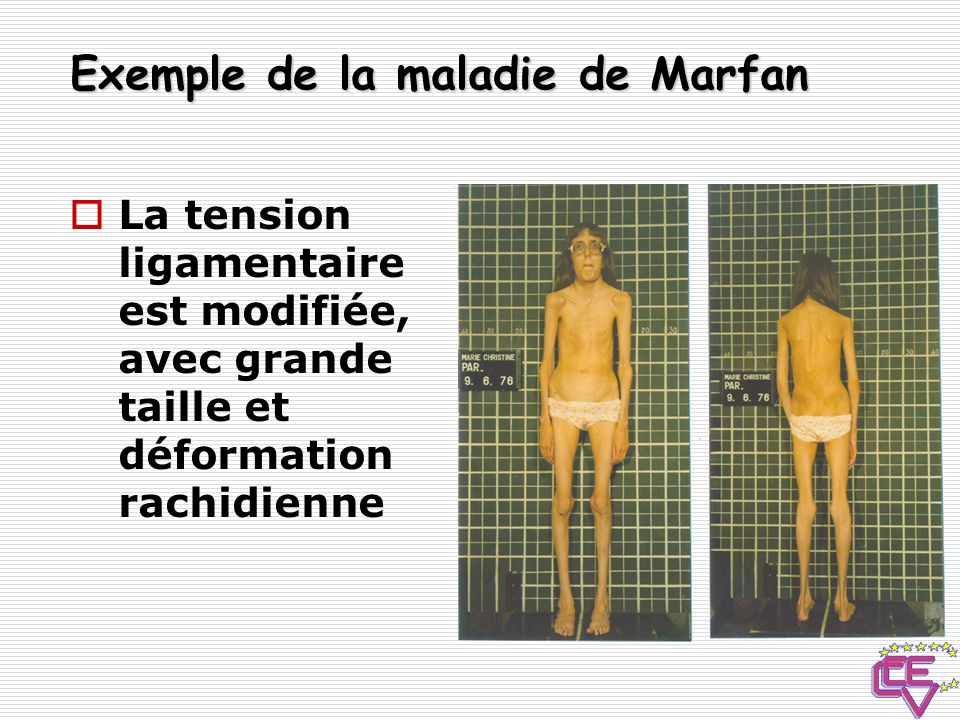 Exemple de la maladie de Marfan