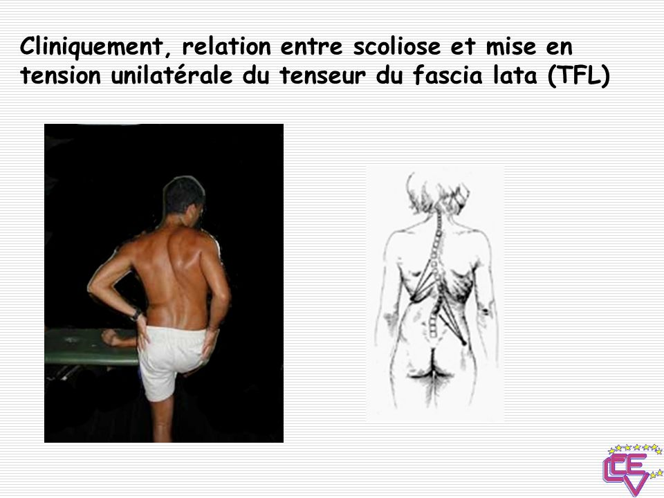 Cliniquement, relation entre scoliose et mise en tension unilatérale du tenseur du fascia lata (TFL)