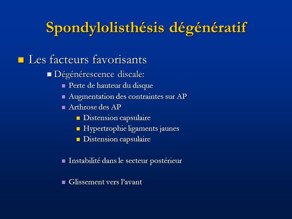 Spondylolisthésis dégénératif