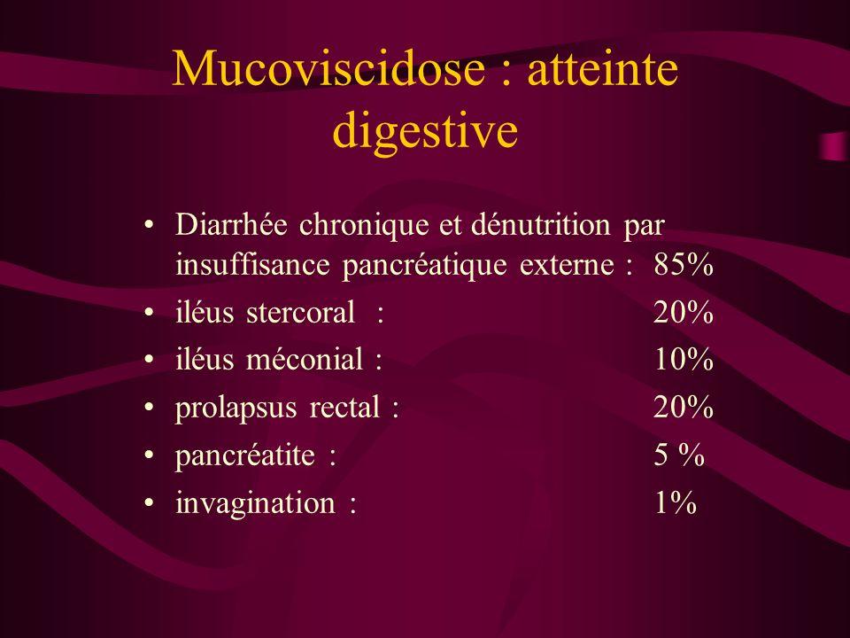 Mucoviscidose : atteinte digestive