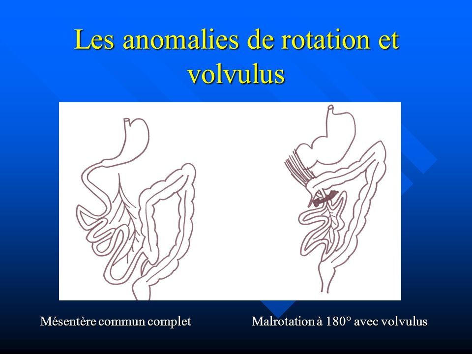Les anomalies de rotation et volvulus