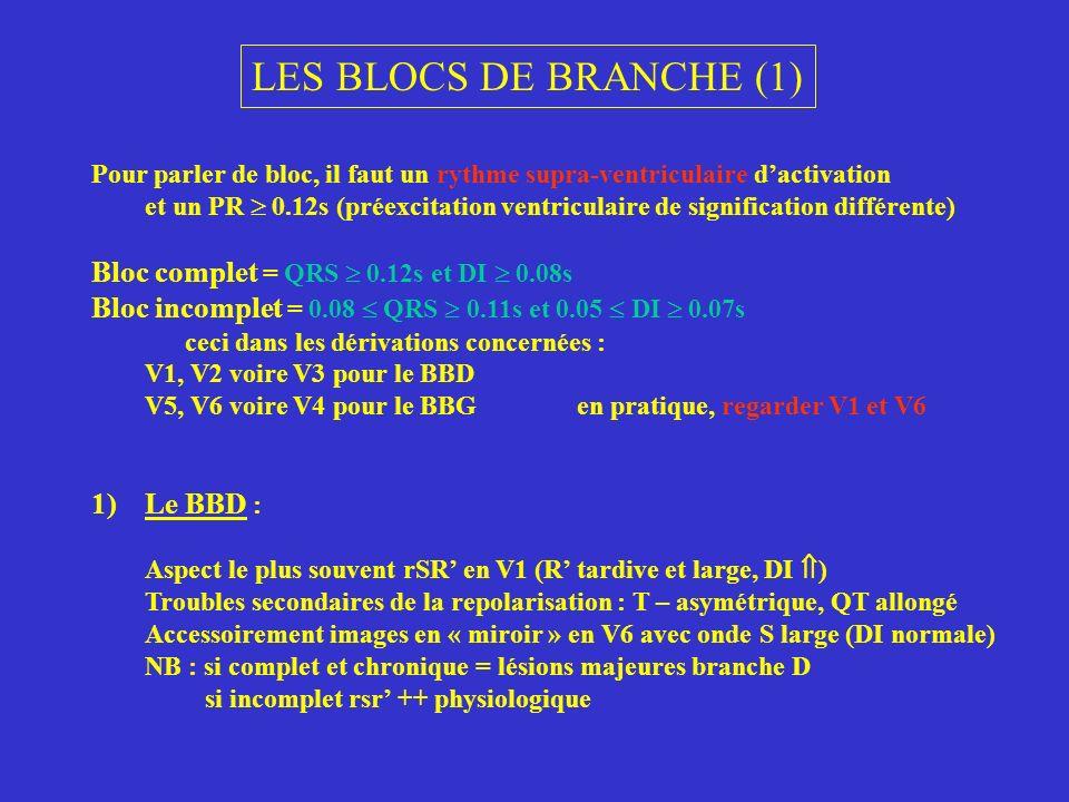 LES BLOCS DE BRANCHE (1) Bloc complet = QRS  0.12s et DI  0.08s