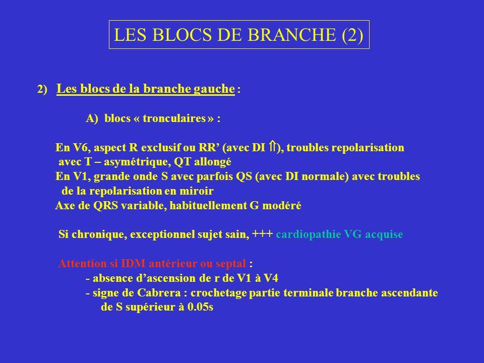 LES BLOCS DE BRANCHE (2) 2) Les blocs de la branche gauche :