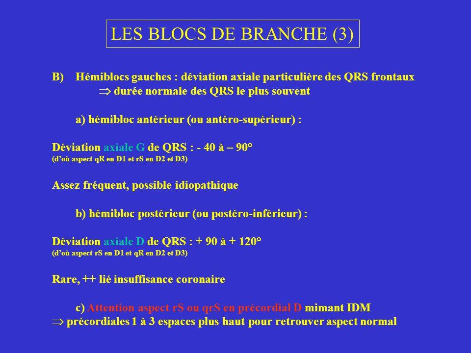 LES BLOCS DE BRANCHE (3)Hémiblocs gauches : déviation axiale particulière des QRS frontaux.  durée normale des QRS le plus souvent.