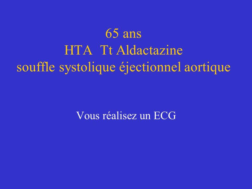 65 ans HTA Tt Aldactazine souffle systolique éjectionnel aortique