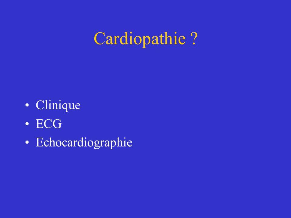 Cardiopathie Clinique ECG Echocardiographie
