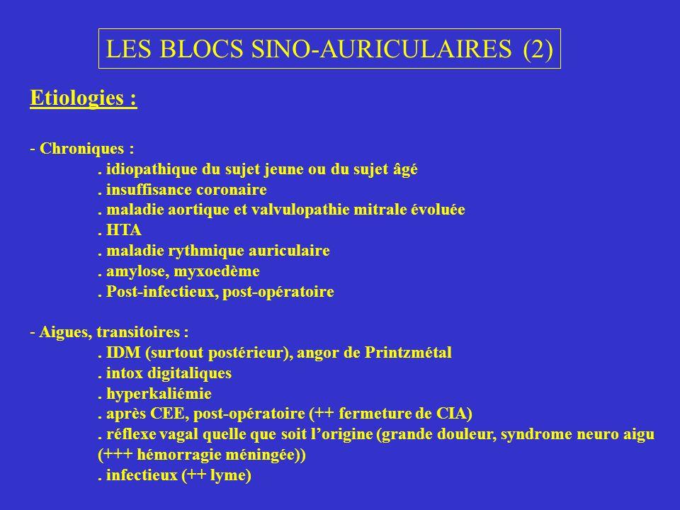 LES BLOCS SINO-AURICULAIRES (2)