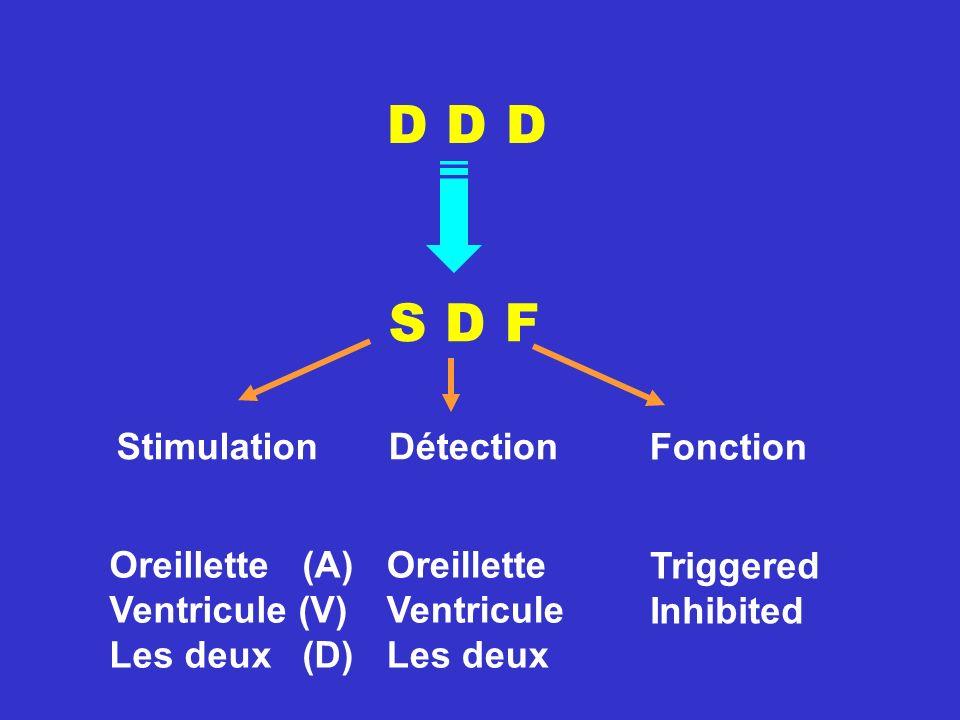 D D D S D F Stimulation Détection Fonction Oreillette (A)