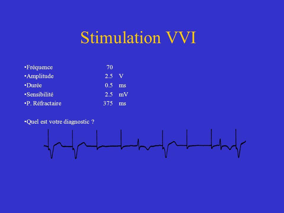 Stimulation VVI Fréquence 70 Amplitude 2.5 V Durée 0.5 ms