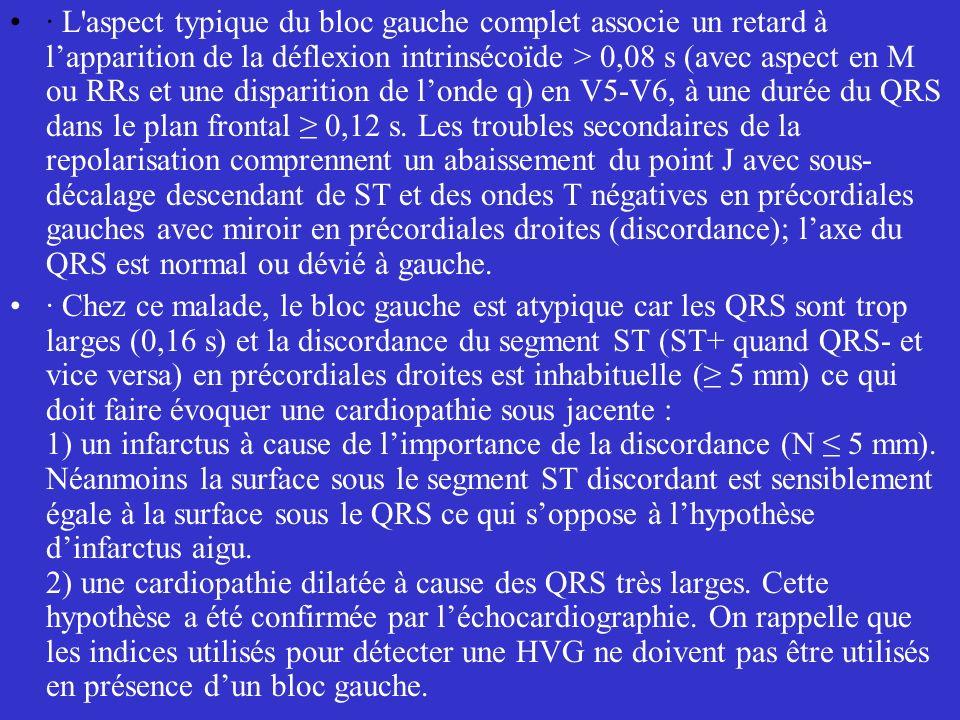 · L aspect typique du bloc gauche complet associe un retard à l'apparition de la déflexion intrinsécoïde > 0,08 s (avec aspect en M ou RRs et une disparition de l'onde q) en V5-V6, à une durée du QRS dans le plan frontal ≥ 0,12 s. Les troubles secondaires de la repolarisation comprennent un abaissement du point J avec sous-décalage descendant de ST et des ondes T négatives en précordiales gauches avec miroir en précordiales droites (discordance); l'axe du QRS est normal ou dévié à gauche.