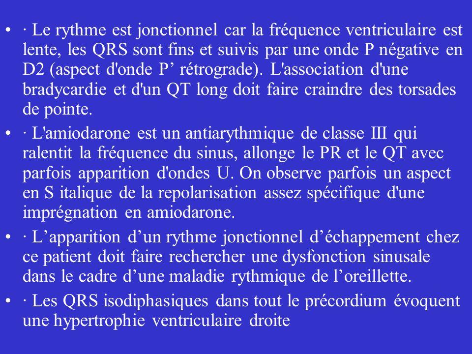 · Le rythme est jonctionnel car la fréquence ventriculaire est lente, les QRS sont fins et suivis par une onde P négative en D2 (aspect d onde P' rétrograde). L association d une bradycardie et d un QT long doit faire craindre des torsades de pointe.
