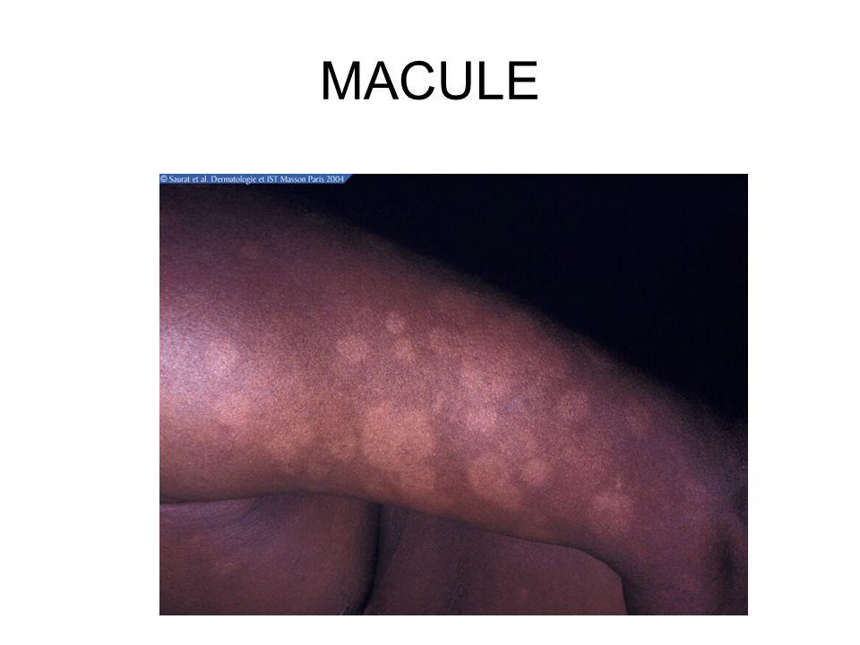 MACULE