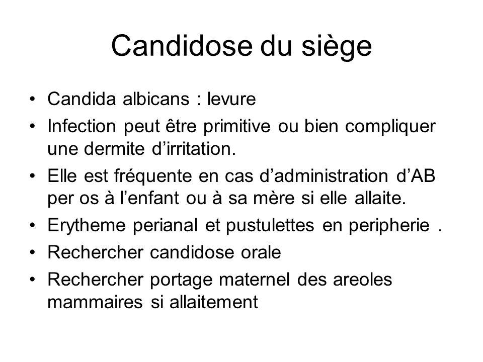 Candidose du siège Candida albicans : levure