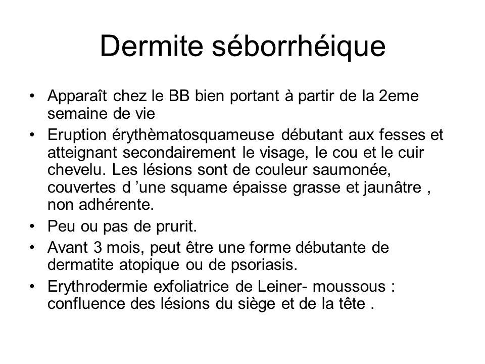 Dermite séborrhéique Apparaît chez le BB bien portant à partir de la 2eme semaine de vie.