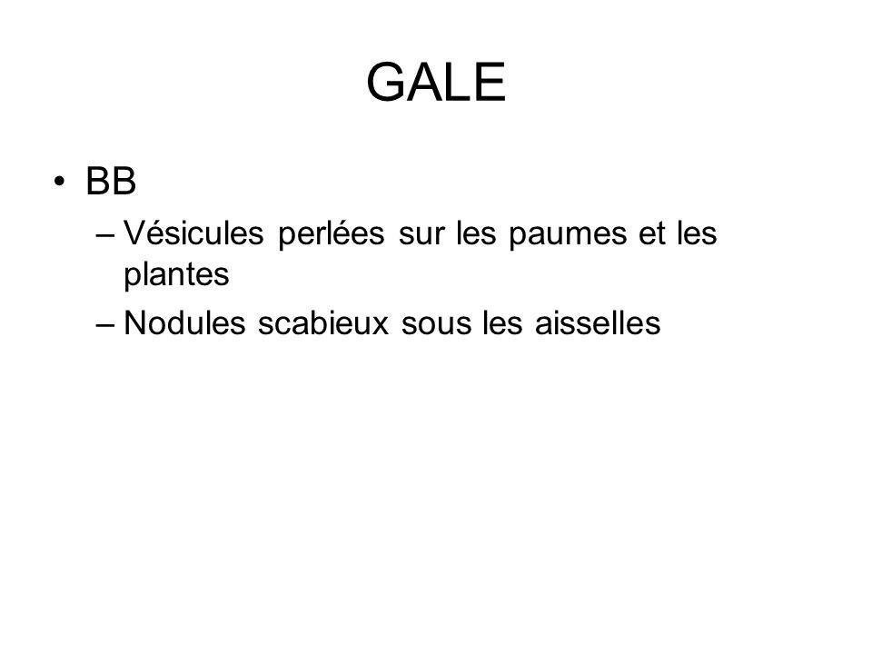 GALE BB Vésicules perlées sur les paumes et les plantes