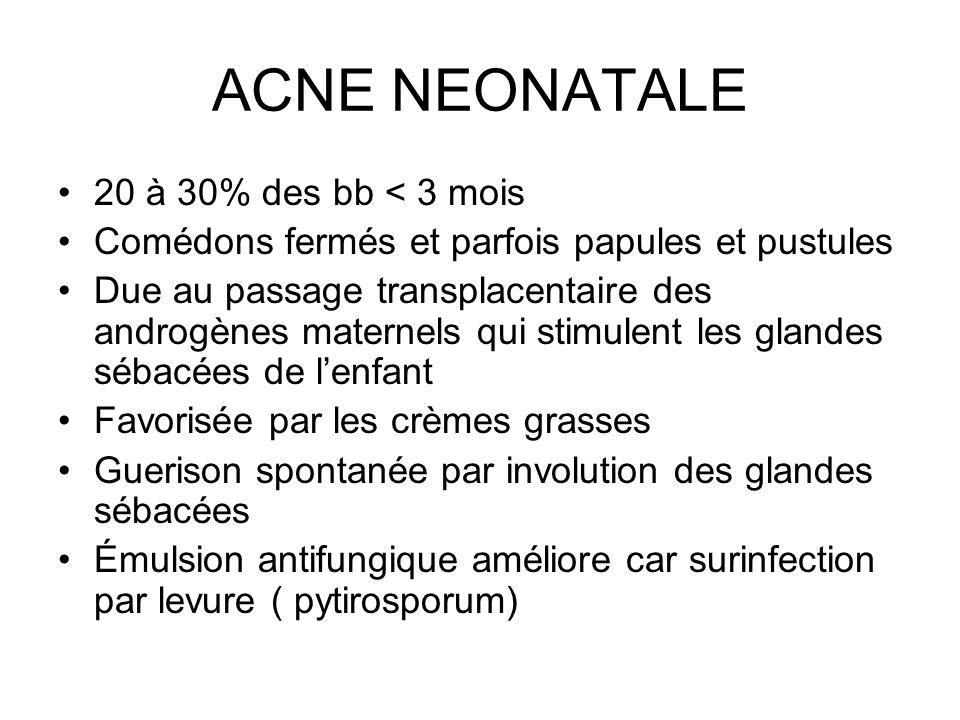ACNE NEONATALE 20 à 30% des bb < 3 mois
