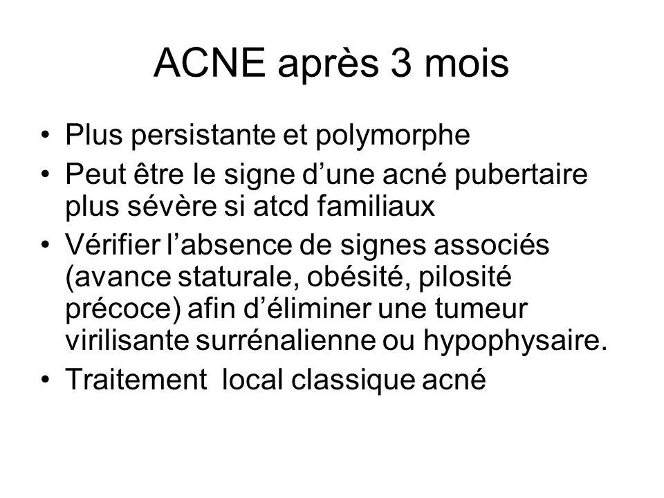 ACNE après 3 mois Plus persistante et polymorphe