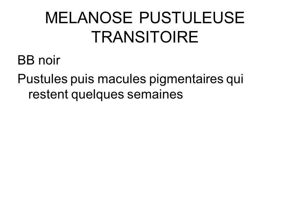 MELANOSE PUSTULEUSE TRANSITOIRE