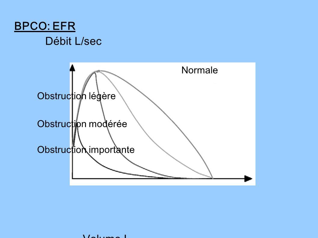 BPCO: EFR Débit L/sec Obstruction modérée Volume L Normale