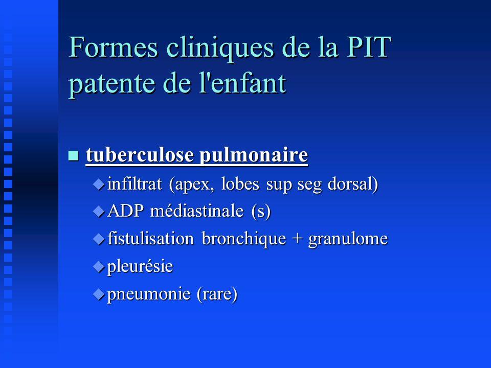 Formes cliniques de la PIT patente de l enfant