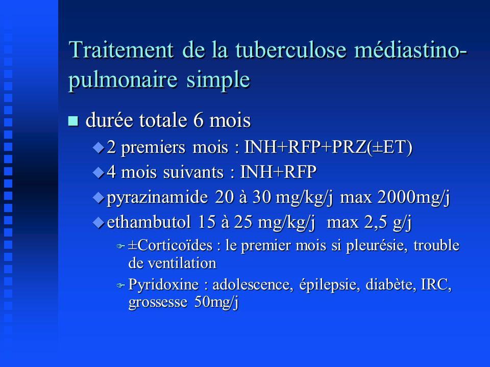 Traitement de la tuberculose médiastino-pulmonaire simple