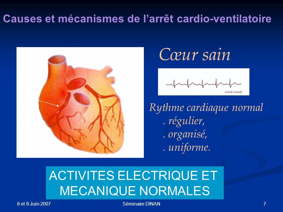 ACTIVITES ELECTRIQUE ET MECANIQUE NORMALES
