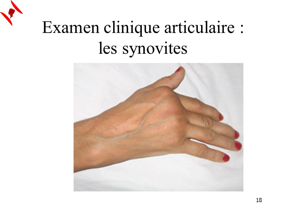 Examen clinique articulaire : les synovites