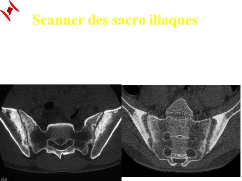 Scanner des sacro iliaques