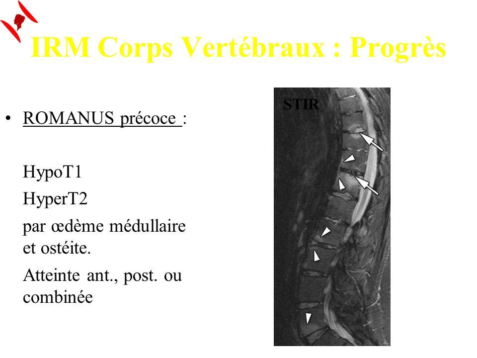 IRM Corps Vertébraux : Progrès