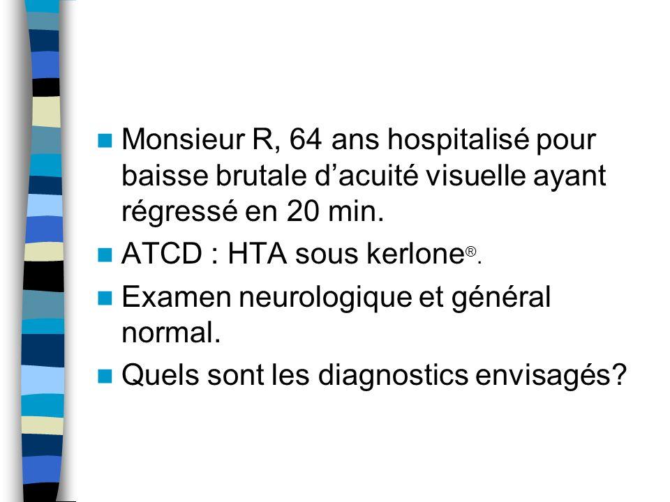 Monsieur R, 64 ans hospitalisé pour baisse brutale d'acuité visuelle ayant régressé en 20 min.
