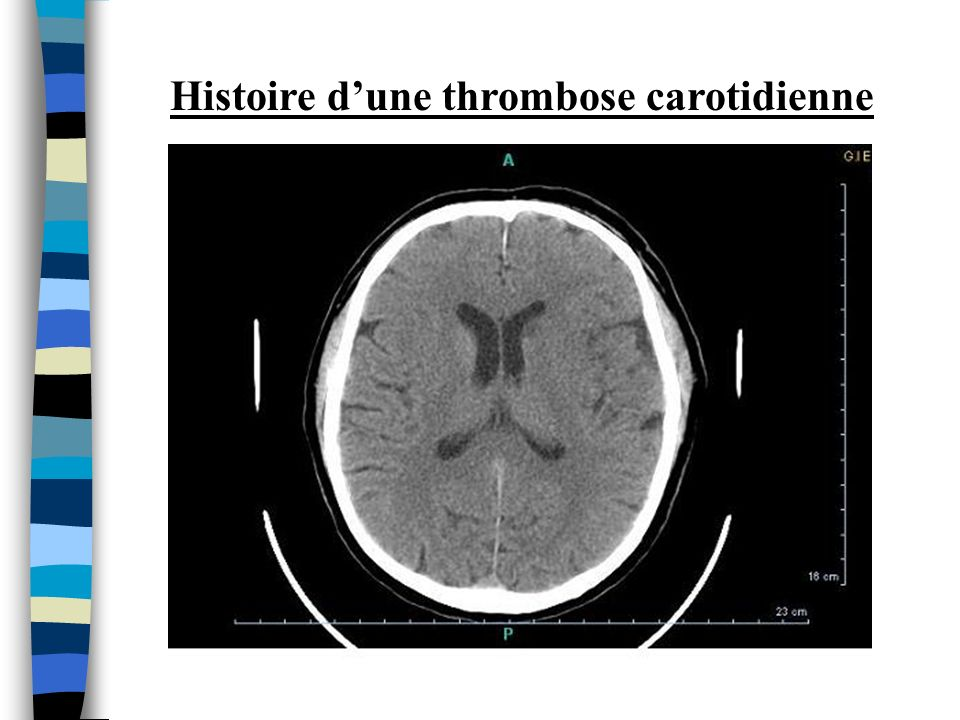 Histoire d'une thrombose carotidienne