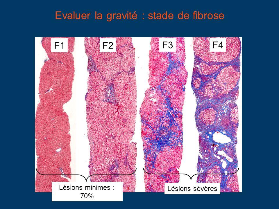 Evaluer la gravité : stade de fibrose