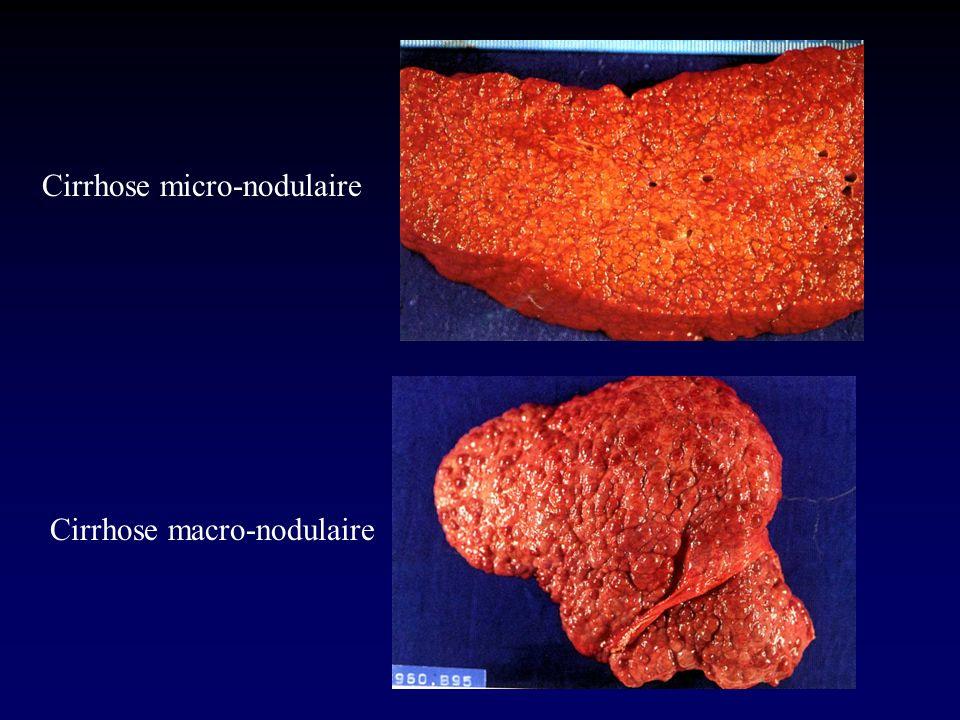 Cirrhose micro-nodulaire