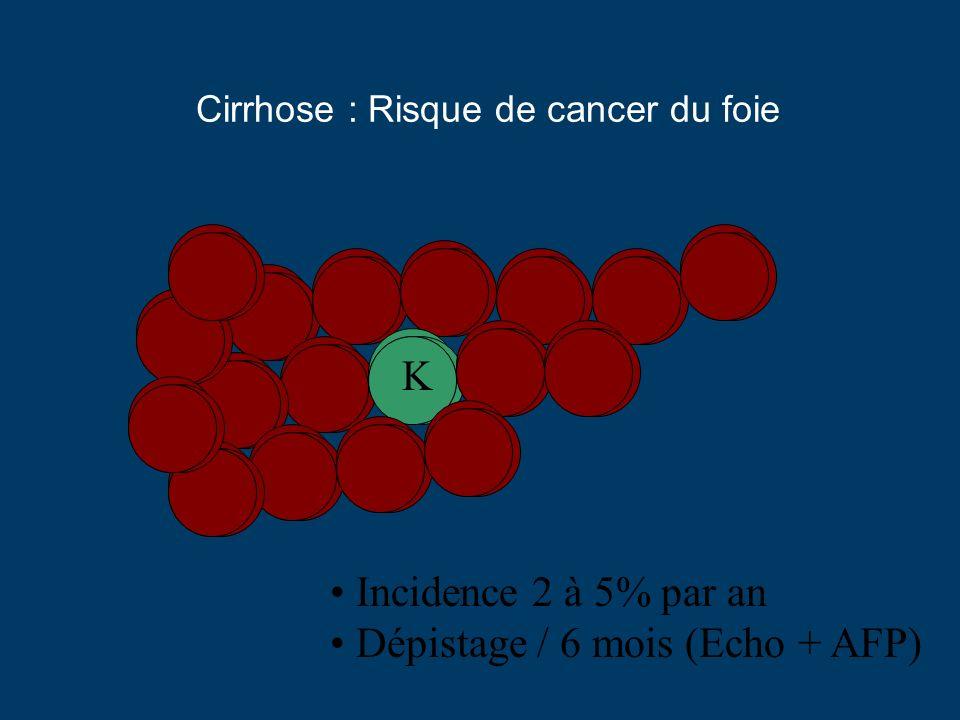 Cirrhose : Risque de cancer du foie