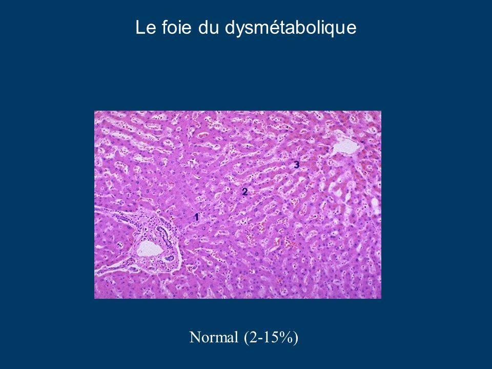 Le foie du dysmétabolique